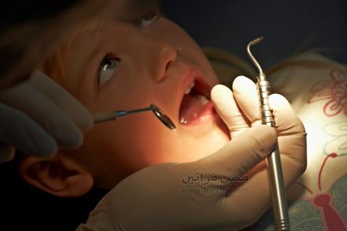 تقويم الأسنان للأطفال ضروري وهدفه صحي أيضًا لصحة اطفالنا